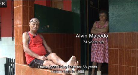 brazil leprosy