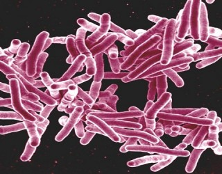 Is a Drug Resistant Tuberculosis Becoming a Global Concern?