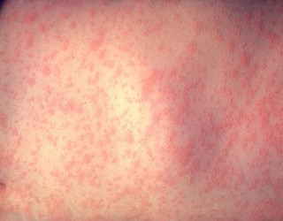 Why Is Measles On The Rise In The United States?
