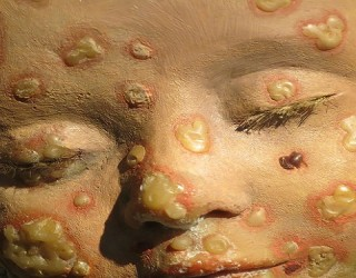 Smallpox Discovery in Warehouse Increases Pandemic Fears