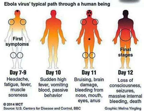 ebola-symptoms