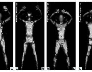 Documents Show TSA Cover-Up of Body Scanner Cancer Risk
