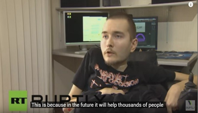 Will the First Human Head Transplant Take Place in 2017?